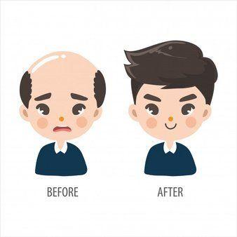 Μεταμόσχευση μαλλιών: Η οριστική λύση.