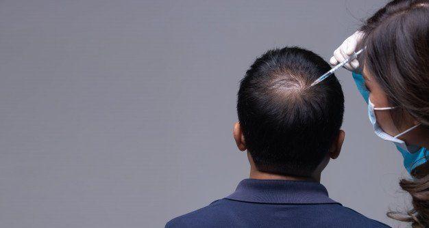 Τι είναι η μεσοθεραπεία μαλλιών;